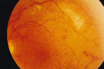 Retinopatia cukrzycowa w obrazie dna oka